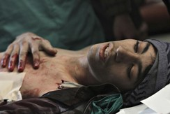An injured civilian lies in a field hospital in the Duma neighbourhood of Damascus, Syria