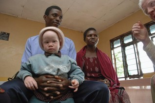 Tanzania albinos decry politicians as police halt protest over killings