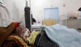 Half Yemen's children malnourished as hunger worsens strife
