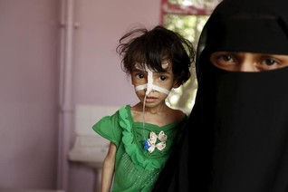 In a Yemen hospital, malnutrition menaces young lives